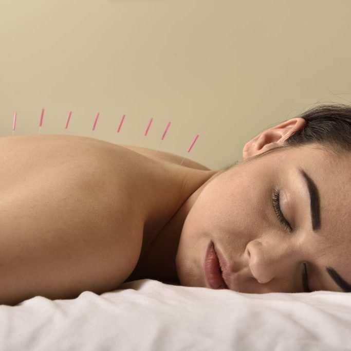 Acupuncture Therapy Chinese Medicine in Houston